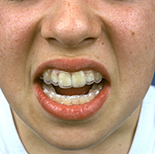 People, child, children, puberty, Health, Dentistry, teeth, dental, people, child, children, puberty, child, children, teenager, teenagers, teenage girl, teenage girls, adolescent, adolescents, dental, brace, braces, mouth, mouths, ab67,